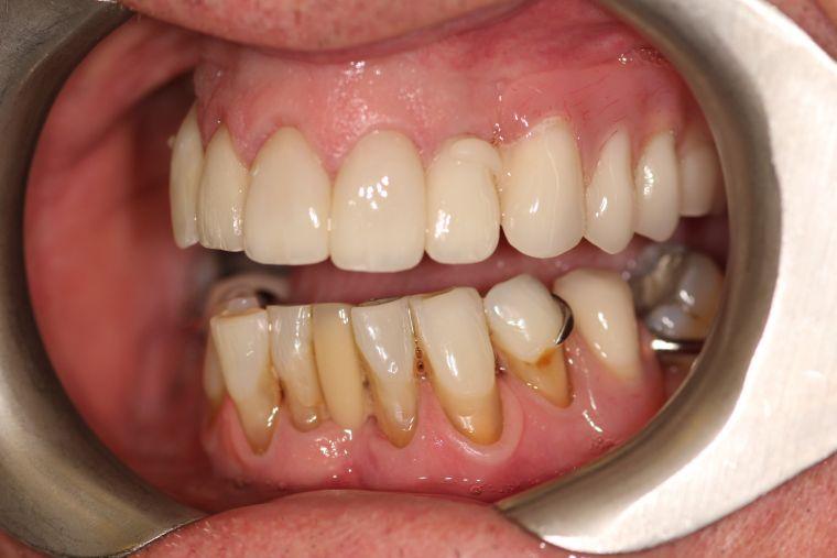 After Dentures