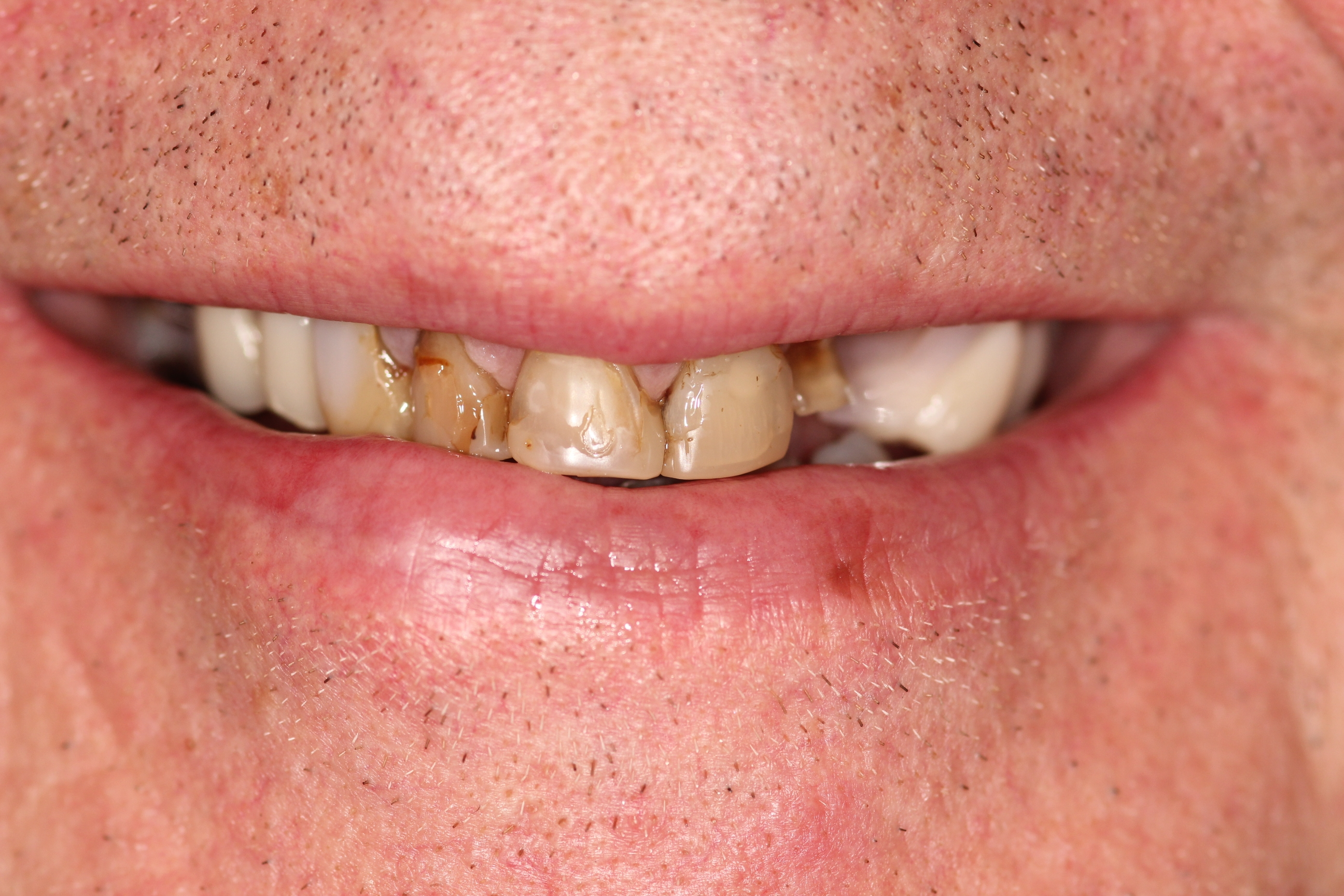 Have a Smile Makeover by experts dentists in Salisbury - Gentle Dental